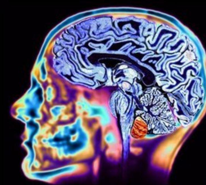 MRI brain scan technology